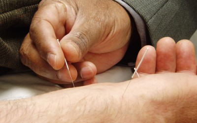Dry Needling in Physical Therapy Encouraged by Legislators